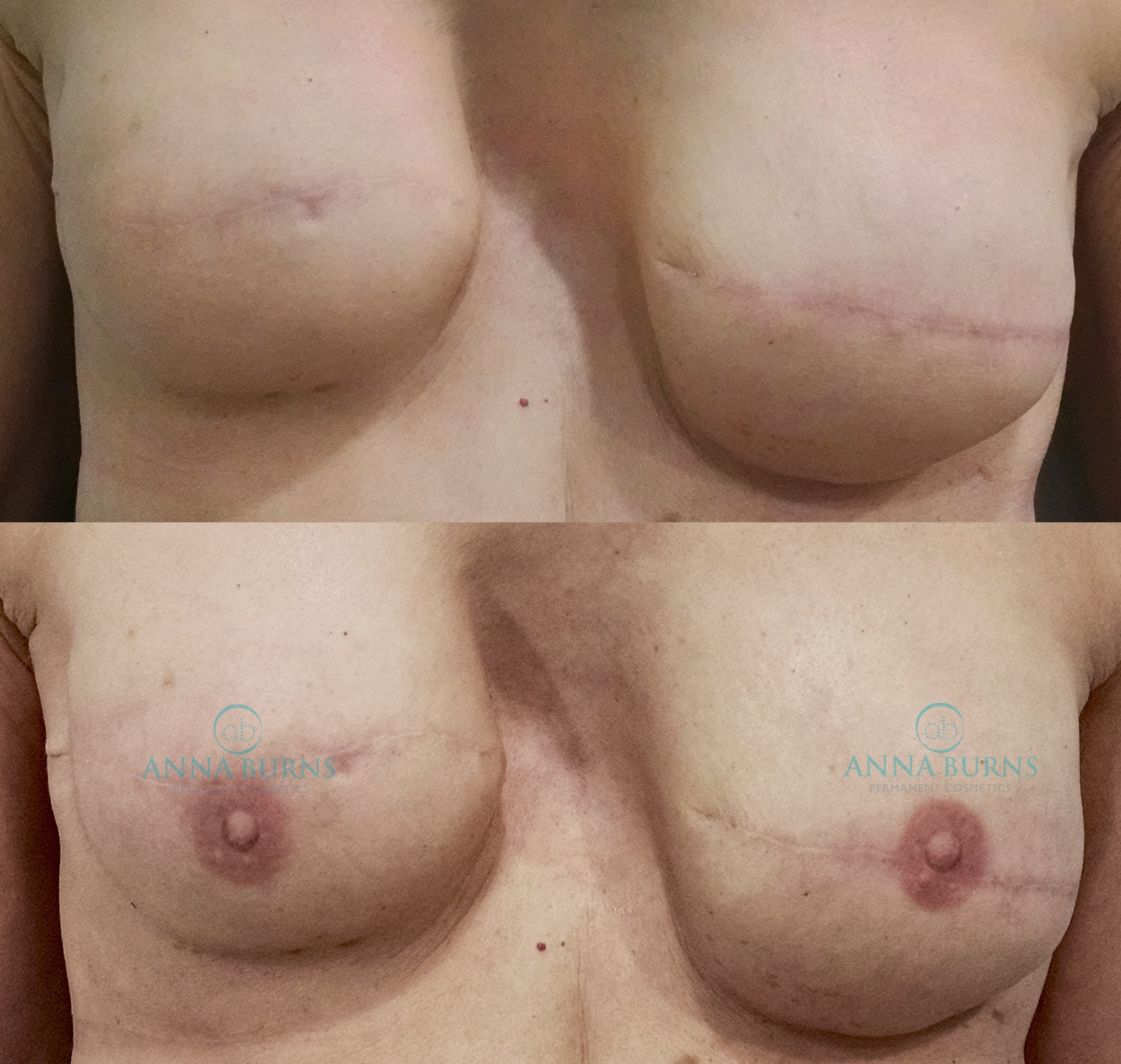 Areola Repigmentation Tattoo