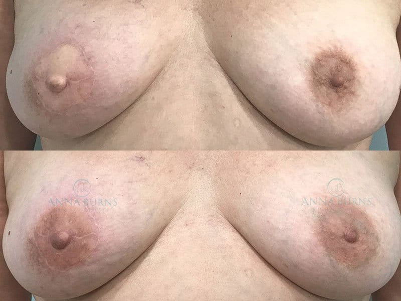 Areola Repigmentation Tattoo Before & After